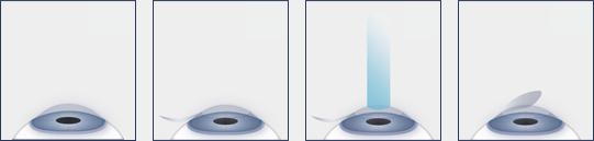 LASIK Procedure