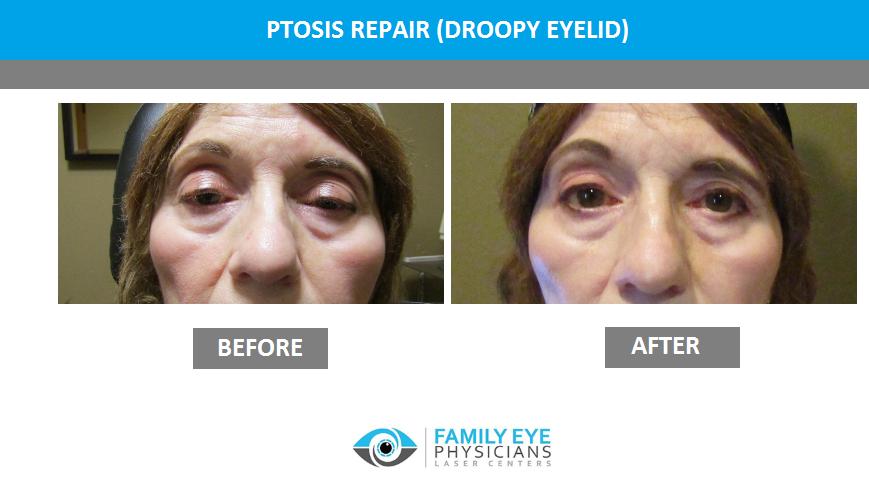 Oculoplastic Surgery for ptosis repair