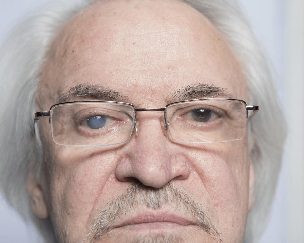 Does cataract surgery hurt?